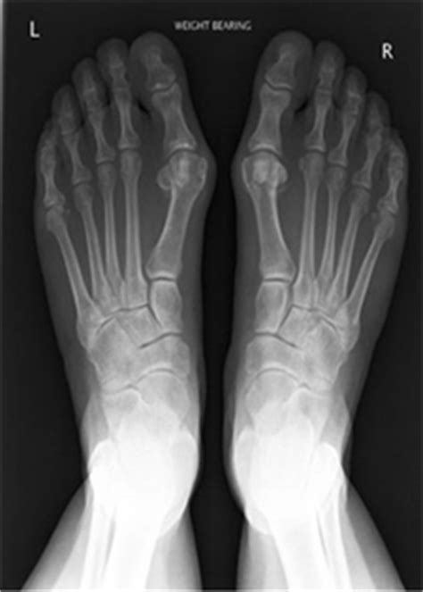 Victorian Orthopaedic Foot & Ankle Clinic Sports Injuries